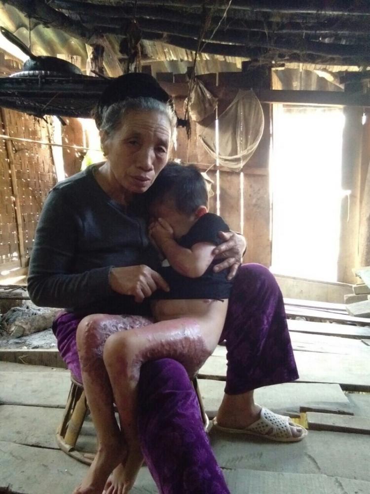 bé trai bị bỏng nặng, bé trai bỏng nặng có nguy có bị liệt nếu không được cứu chữa