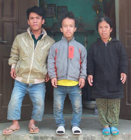 gia đình lùn, cuộc sống vất vả của gia đình toàn người lùn