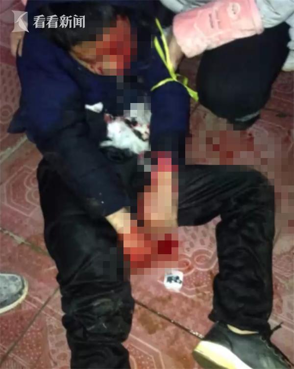 cậu bé suýt mất mạng vì nghe nhạc bằng máy MP3, máy mp3 phát nổ khiến cậu bé nổ mặt