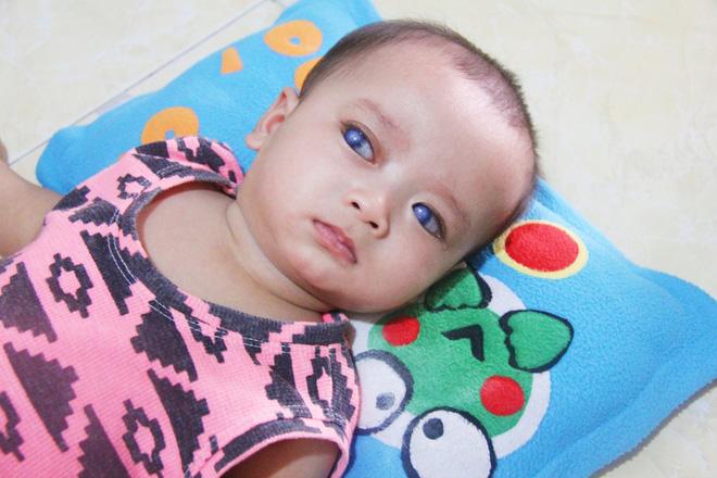 xót xa bé trai với đôi mắt màu xanh có nguy cơ bị mù vĩnh viễn