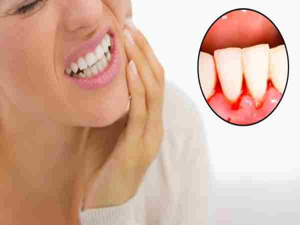 Nguyên nhân và cách chữa chảy máu chân răng tại nhà