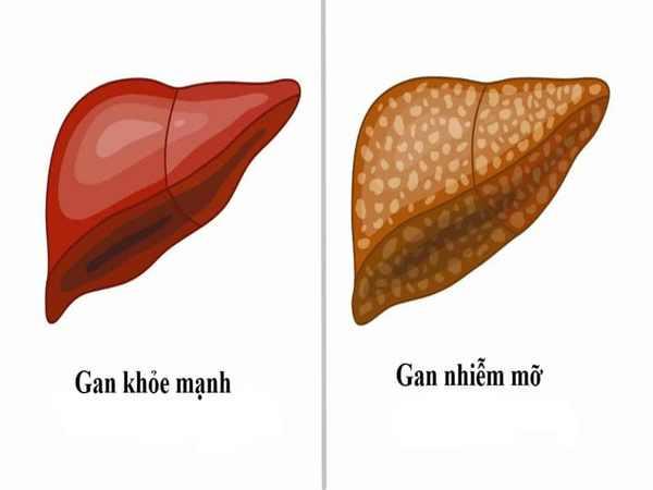 Nguyên nhân, biểu hiện và các biến chứng nghiêm trọng của gan nhiễm mỡ