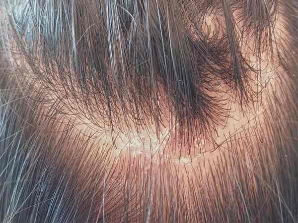 Tìm hiểu chế độ dinh dưỡng của người bệnh nấm da đầu