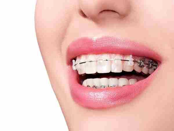 Độ tuổi thích hợp và chế độ dinh dưỡng cho người niềng răng