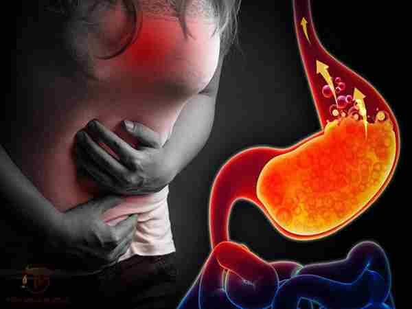 Nguyên nhân và dấu hiệu của trào ngược dạ dày