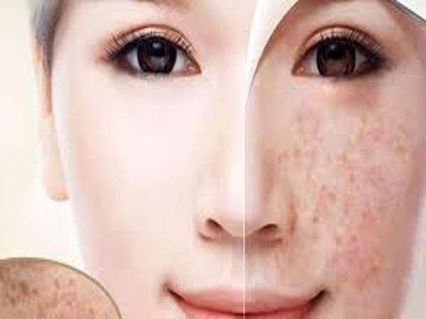 Cách trị nám da mặt hiệu quả từ các nguyên liệu tự nhiên