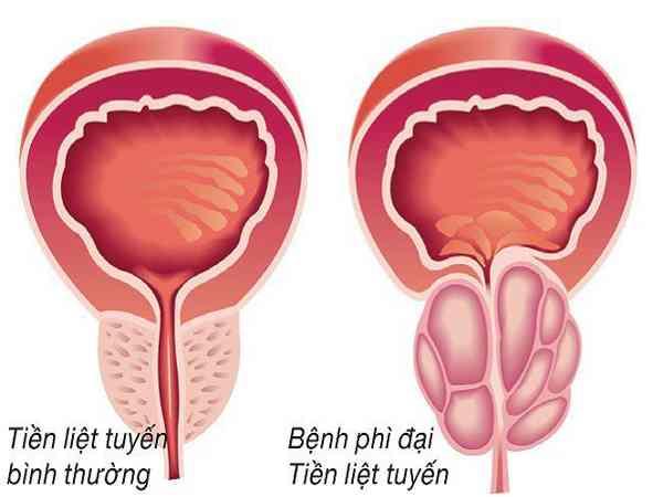 Nguyên nhân và biến chứng của bệnh phì đại tuyến tiền liệt
