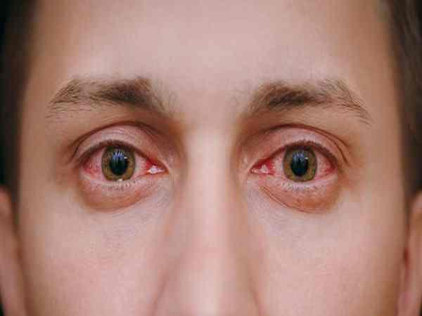 Tìm hiểu chi tiết về bệnh viêm kết mạc